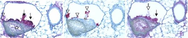 Mesenteric-venous-thrombosis
